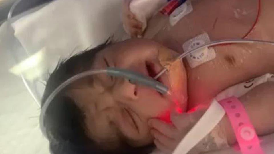 وفاة طفلة سعودية بعد رحلة علاج نتيجة قطعة معدنية داخل الفخذ