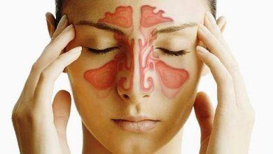 Photo of أسباب وأعراض احتقان الجيوب الأنفية وكيفية علاجها