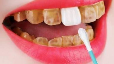 Photo of 6 طرق طبيعية للتخلص من إصفرار الأسنان