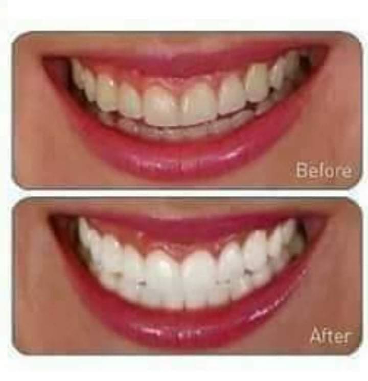 6 طرق طبيعية للتخلص من إصفرار الأسنان